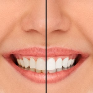 whitening before-after
