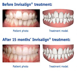 Invisalign Manchester Family Dental Manchester Iowa